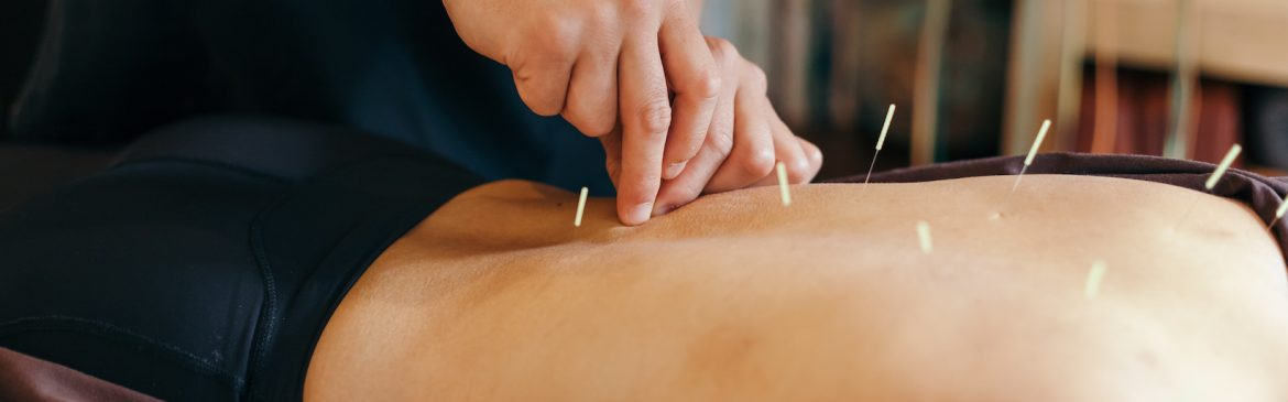 Dry-Needling-Southern-Rehab-and-Sports-Medicine